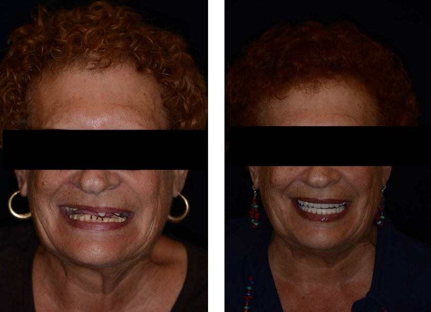 Complete implant tooth replacement, teeth in a day, and